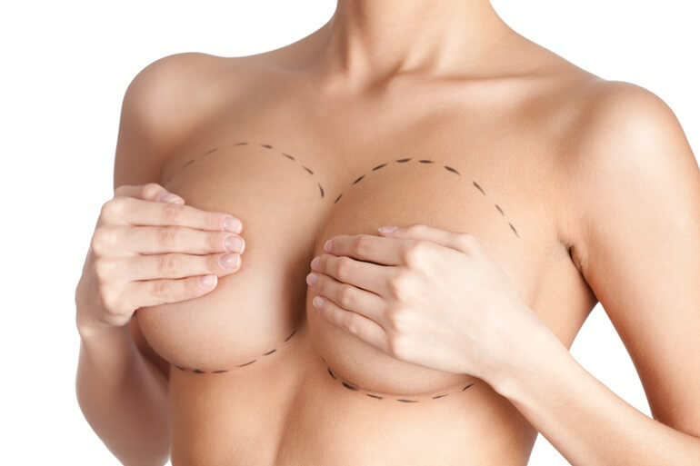 Mell ultrahang implantátum előtt